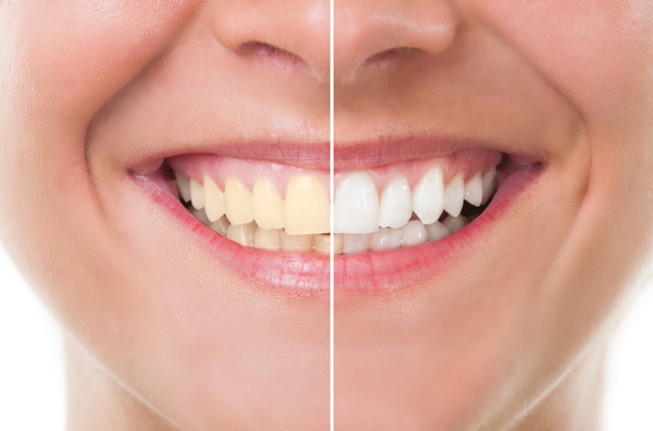 Before and after photo of the teeth whitening treatment available at Sparkle Dental